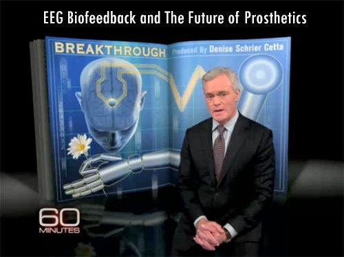 EEG Biofeedback and The Future of Prosthetics